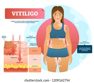 Vitiligo vector illustration. White pigment autoimmune disease with pigment loss. Skin depigmentation and genetic illness. Diagram with epidermis, dermis, hypodermis and muscle.