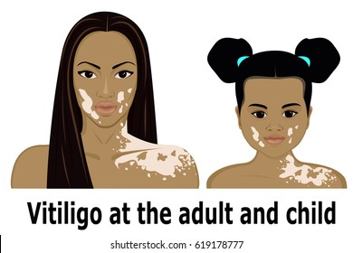 Vitiligo at the woman and the little girl