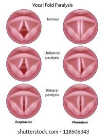 Vocal cord paralysis