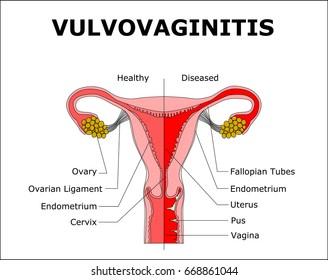 VULVOVAGINITIS,color vector illustration