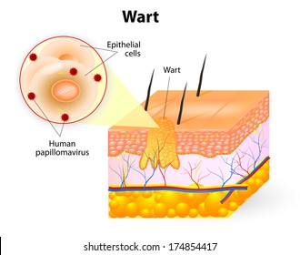 Wart anatomy. Warts are benign skin growths that appear when a human papillomavirus (HPV) infects the top layer of the skin.