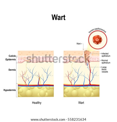 wart cross section human skin human stock vector (royalty free Anatomy of Wart wart cross section of the human skin with human papillomavirus infection hpv is a