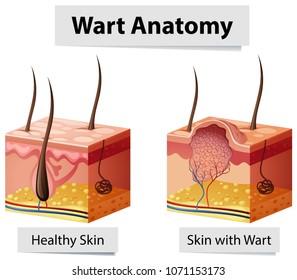 Wart Human Skin Anatomy Illustration illustration