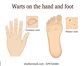 Warts on the hand and foot depicted in general and close-up