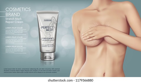 Web banner design of Stretch mark removal cream. Concept vector illustration of skin care and with woman with stretch marks on breast