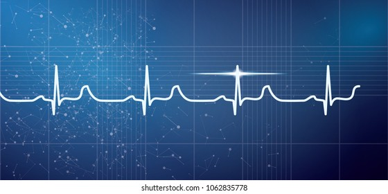 White Heart Beat Pulse Electrocardiogram Rhythm on Blue Background. Vector Illustration. Healthcare ECG or EKG Medical Life Concept for Cardiology.