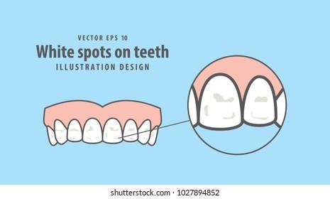 White spots on teeth illustration vector on blue background. Dental concept.