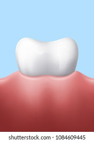 White tooth in gum, ESP 10 contains transparency.