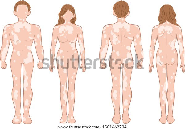 Whole Body Man Woman Who Have Stock Vector Royalty Free 1501662794