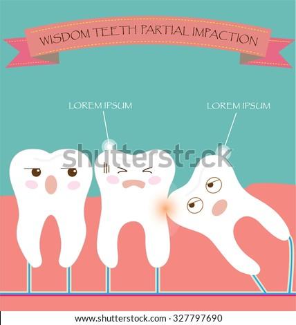 Wisdom Teeth Partial Eruption Impaction Stock Vector Royalty Free