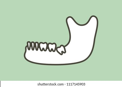 wisdom tooth ( angular or mesial impaction ) in mandible or lower jaw - dental cartoon vector flat style cute character for design