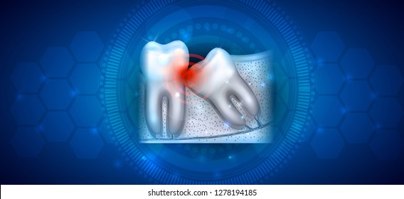 Wisdom tooth eruption problems illustrated anatomy on an abstract blue background