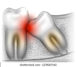 Wisdom tooth eruption problems illustrated anatomy