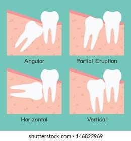 Wisdom tooth, vector