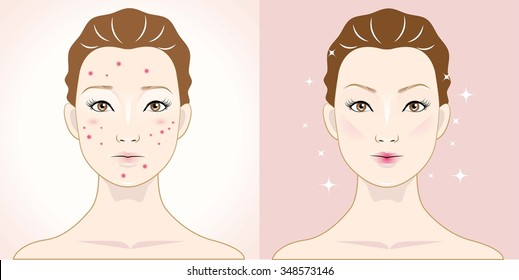 woman with acne and happy one with healthy skin.