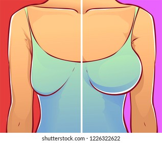Woman breast, before-after. vector illustation