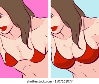 Woman breast before-after, vector illustration
