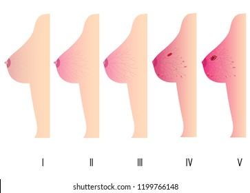 Woman Breast Cancer Stages. Pretty Woman Body Care Concept. Vector Illustration