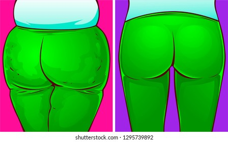 Woman buttocks, before-after. Vector illustration.