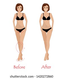 Woman epilation concept - beauty woman before and after unwanted hair removing. Happy girl after armpit, bikini, and legs epilation. Vector illustration