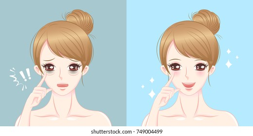 woman eye bags before and after on the blue background