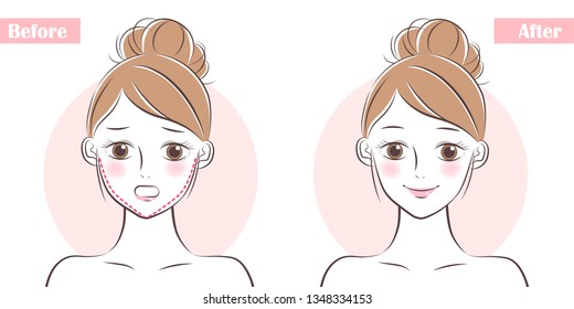 woman face before and after plastic surgery