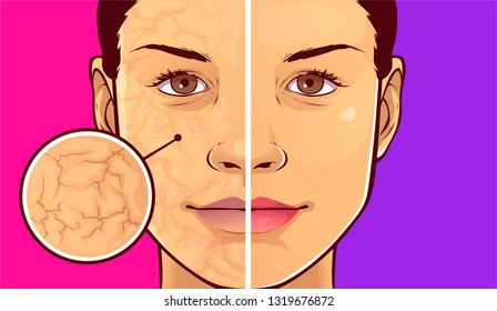 Woman face with dry skin. Before-after. Vector illustration.