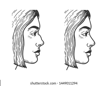 Woman face rhinoplasty sketch engraving vector illustration. Scratch board style imitation. Black and white hand drawn image.