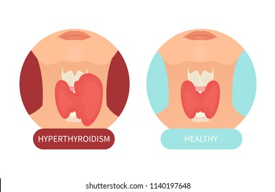 Woman with healthy thyroid gland and hyperthyroidism made in cartoon style. Front view sign. Human body organ anatomy icon. Medical concept. Vector illustration made in cartoon style.