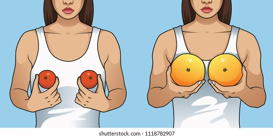 Woman holding tangerines and grapefruits to illustrate breast enlargement surgery