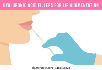 Woman makes procedure of beauty injection for lip augmentation. Hyaluronic acid lip filler injection. Vector