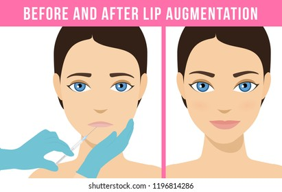 Woman makes procedure of beauty injection for lip augmentation. Lips before and after hyaluronic acid lip filler injection. Vector