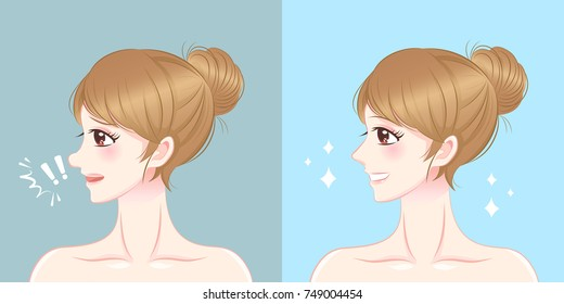 woman nose before and after cosmetic surgery