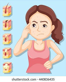 Woman and pimple problems illustration