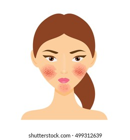 Woman with rosacea, psoriasis skin disease. Vector illustration of scab damaged female face