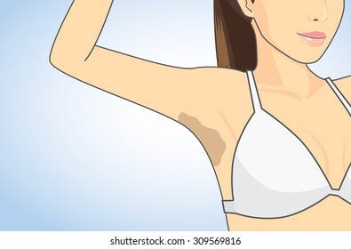 Woman showing her armpit skin discoloration with the lifting up arm.