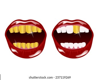Woman smile with golden teeth