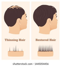 woman with thinning hair before and after hair loss regrowth  female  pattern baldness set with