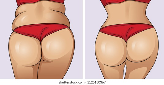 Woman's body before and after weight loss.