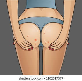 Woman's buttocks with problematic skin.