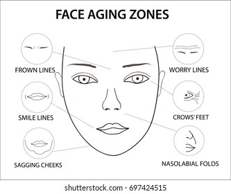 Woman's face with the places where wrinkles appear with age. Girls face aging zones: worry lines, nasolabial folds, crow's feet, drooping chin Wrinkled face.