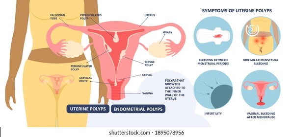 womb cancer level hormone Heavy Bleeding fertility problem infertility block tube cervix pain infection inflammation biopsy lining tumor cyst Surgical removal sessile pedicle menstruation and blood