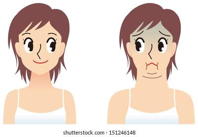 Women of double chin