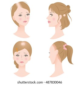 """women with pattern hair loss get a receding hairline, bald spot on the top or side of the head, and traction by putting the hair under strain/set of woman""""s hair problems"""