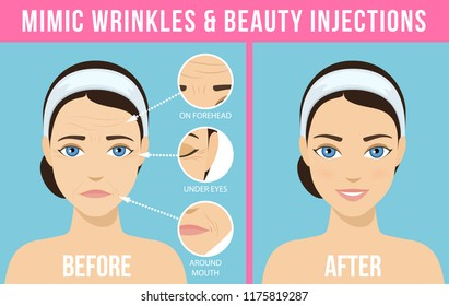 Women's anti-aging skin care. Different types of facial wrinkles. Woman before and after injection. Anti-aging procedure. Vector