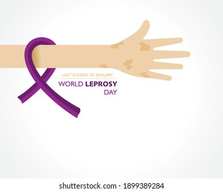 World Leprosy Day observed on last  Sunday of January every year