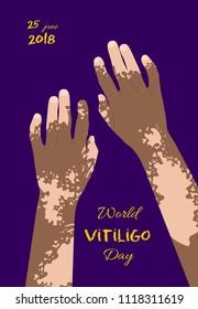 World Vitiligo day poster
