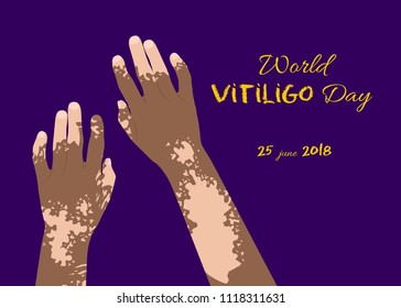 World Vitiligo day poster
