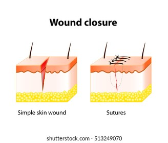 wound healing process with help surgical suture. Series of stitches made to secure apposition of the edges of a surgical or traumatic wound