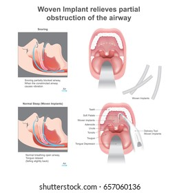 Woven implant add structural support and stiffen the soft palate, which reduces the vibration that produces snoring and keeps the palatal tissue from collapsing and obstructing the airway during sleep